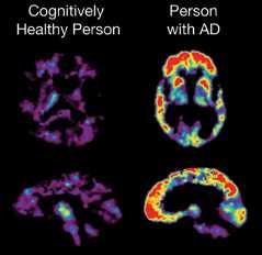 PET bei Alzheimer