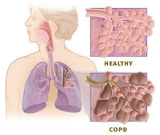 copd-vs-gesunde-lunge