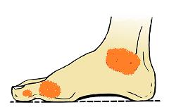 Fuß Arthritis