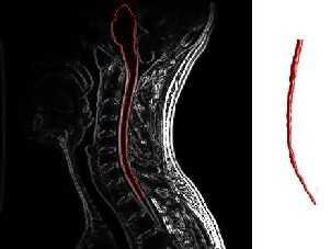 Multiple Sklerose Läsionen